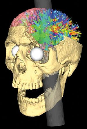 Personality psychology - Image: Simulated Connectivity Damage of Phineas Gage 4 van Horn Pathways Damaged left
