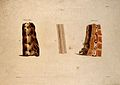 Three sections of vertebrae. Coloured aquatint by Bennett af Wellcome V0009637.jpg