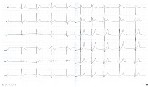 U wave - Image: U wave sinus arythmia