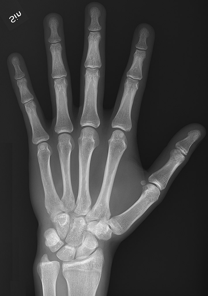 Xray Left Hand File:X-ray of normal h...