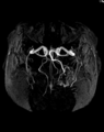 001 Arteriovenous Malformation MRT TOF MIP 13.png