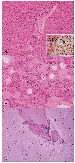 Lactobacillales - Image: 02 0667 1b