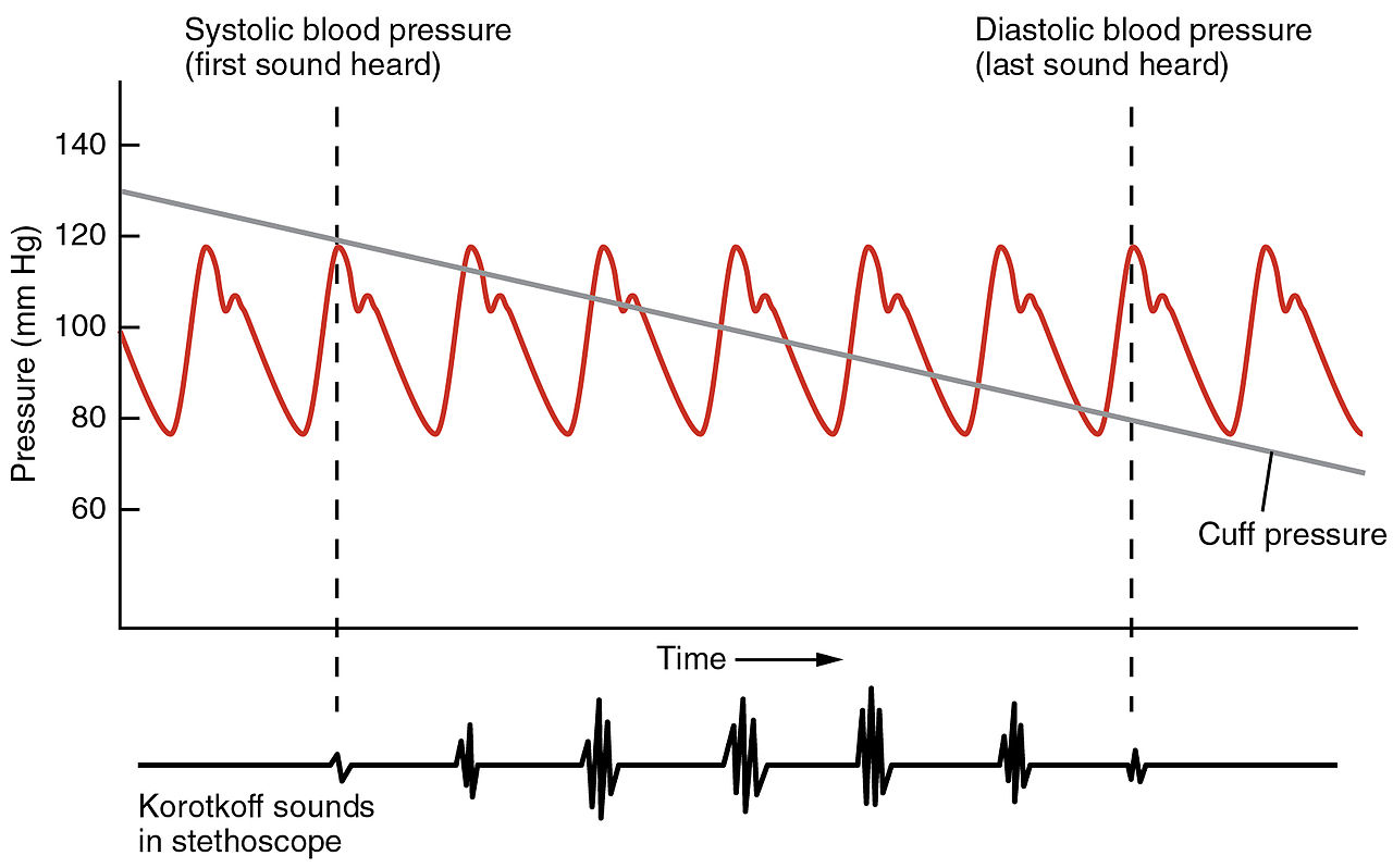 The Plot Diagram: 2111 Blood Pressure Graph.jpg - Wikipedia,Chart