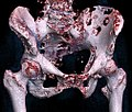 3D rendered CT of hip bone metastases.jpg