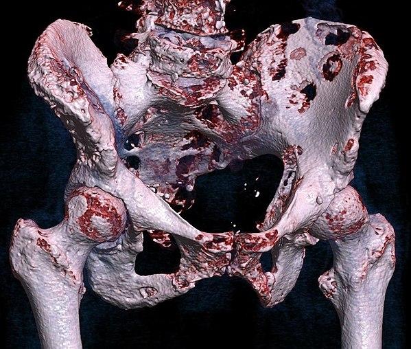 Bone Metastasis Wikiwand
