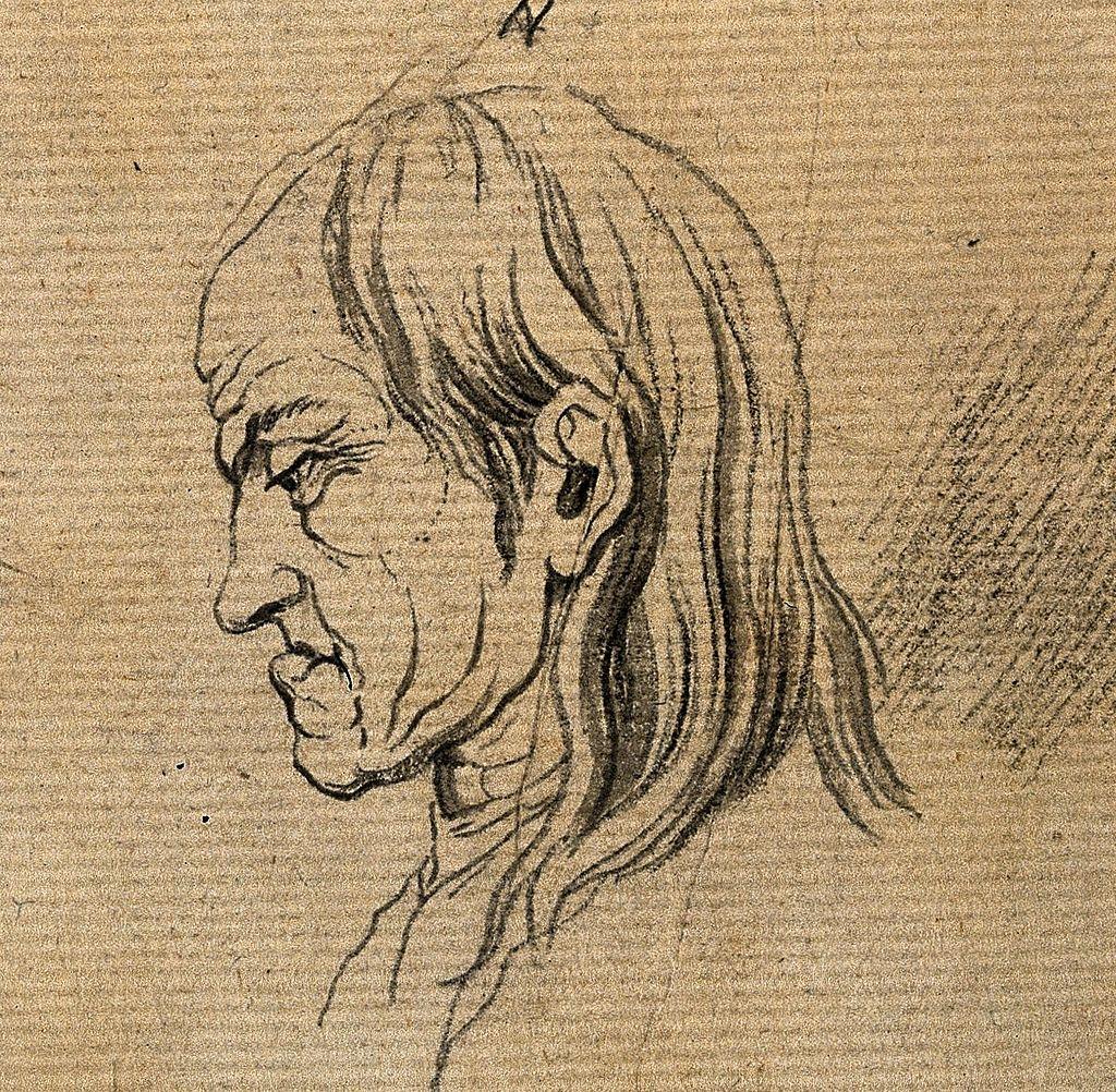 A man whose face exemplifies the melancholy temperament. Dra Wellcome V0009108ER