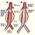 Aneurysm endovascular.jpg