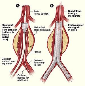 Endovascular aneurysm repair - Image: Aneurysm endovascular