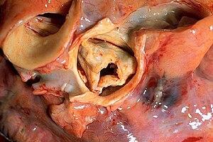 Gross pathology of rheumatic heart disease: ao...