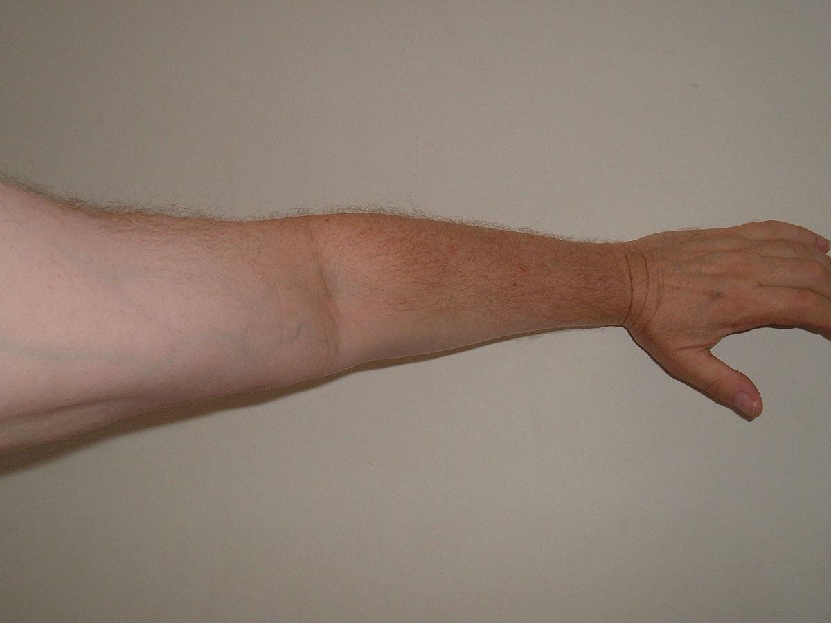 photo regarding Arm & Hammer Printable Coupons titled Arm - Basic English Wikipedia, the totally free encyclopedia