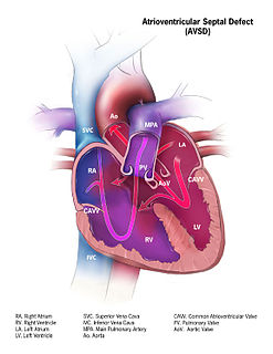 Atrioventricular septal defect Human disease
