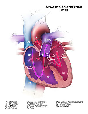 picture about Vsd 190 Printable referred to as Atrioventricular septal defect - Wikipedia