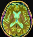 Brain MRI 115042 rgbc pd t2 diff.png