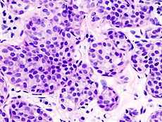 Breast invasive lobular carcinoma (2).jpg