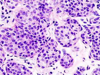 Invasive lobular carcinoma Human disease