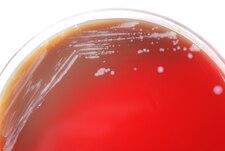 Kolonie Burkholderia mallei na krevním agaru