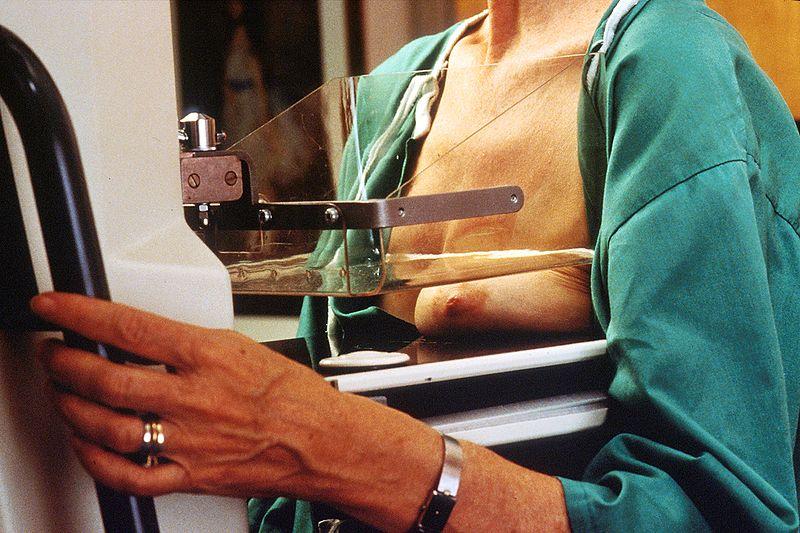 File:Diagnosis - Mammography.jpg