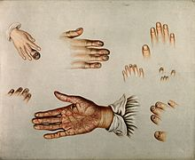 Diseases of the skin and nails, 1850-80 Wellcome V0010209.jpg