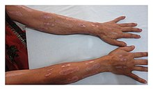 Multiple, well-demarcated, linear, longitudinal erosions on the dorsum of the bilateral forearms