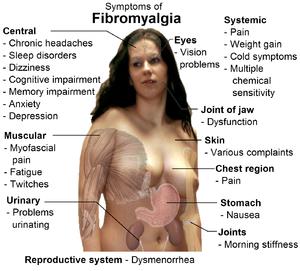English: Common signs and symptoms of fibromya...
