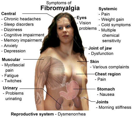 An image of a woman with words around her describing the symptoms of fibromyalgia