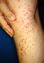 Human leg three days after brief contact with fire ant colony