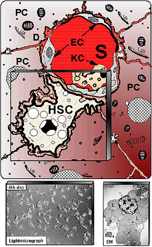 Hepatic stellate cell - Schematic presentation of hepatic stellate cells (HSC) located in the vicinity of adjacent hepatocytes (PC) beneath the sinusoidal endothelial cells (EC). S – liver sinusoids; KC – Kupffer cells. Down left shows cultured HSC at light-microscopy, whereas at down right electron microscopy (EM) illustrates numerous fat vacuoles (L) in a HSC, in which retinoids are stored.