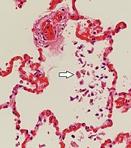 Histopathology of pulmonary congestion and siderophages.jpg