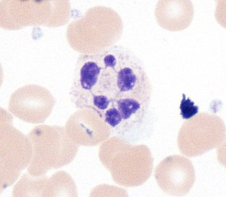 Neutrophil - Hypersegmented neutrophil.