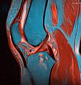 Knee MRI 113746 rgbcb.png