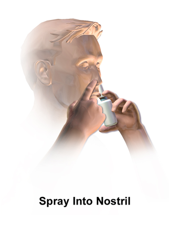 Nasal spray - Diagram of nasal spray application
