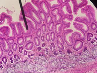 Pylorus - Microscopic cross-section of the pylorus.