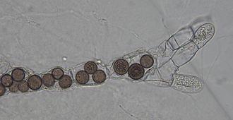 Blastocladiomycota - Rozella allomycis parasitizing the chytrid Allomyces sp.
