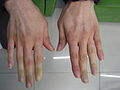 Secondary Raynaud's in Sjögren's syndrome 2.JPG