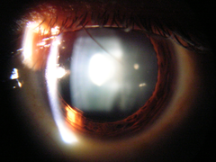 Slit lamp view of Cataract in Human Eye.png