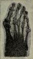 Soldiersfootmili00munsrich Fig47 Hallux valgus with bunion and clubbed toes.png