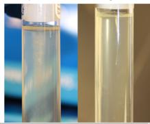 Microbiological culture - Wikipedia