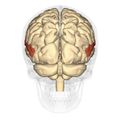 Superior temporal gyrus posterior.png