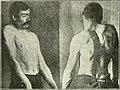 Traité des torticolis spasmodiques, spasmes, tics, rythmies du cou, torticolis mental, etc. (1907) (14778054521).jpg