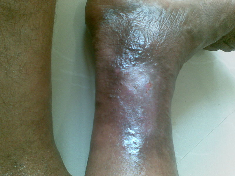 File:Venous ulcer Wound healed in one month - Varicose Vein.jpg
