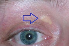 Xanthelasma palpebrarum.jpg