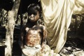 ASC Leiden - Coutinho Collection - B 12 - Infirmary in Sara, Guinea-Bissau - Child with burn wounds - 1974.tif