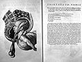 """Assisted delivery from """"A sett of anatomical tables"""" Wellcome L0000447.jpg"""