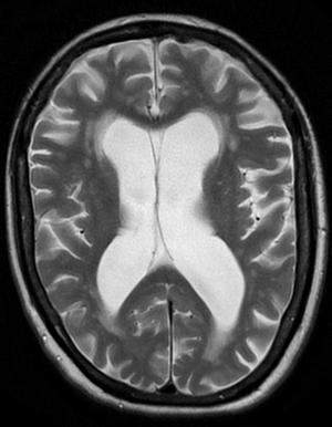 BrainAtrophy(exvacuo).png