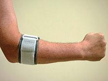 Tennis Elbow Wikipedia