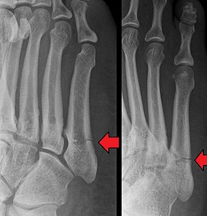 Image result for jones fracture