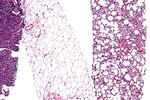 Cellular differentiation - Micrograph of a liposarcoma with some dedifferentiation, that is not identifiable as a liposarcoma, (left edge of image) and a differentiated component (with lipoblasts and increased vascularity (right of image)). Fully differentiated (morphologically benign) adipose tissue (center of the image) has few blood vessels.  H&E stain.