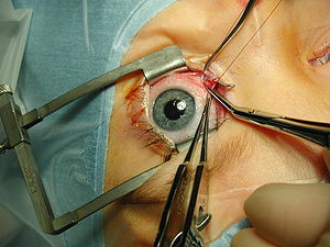Strabismus surgery—medial rectus muscle being ...