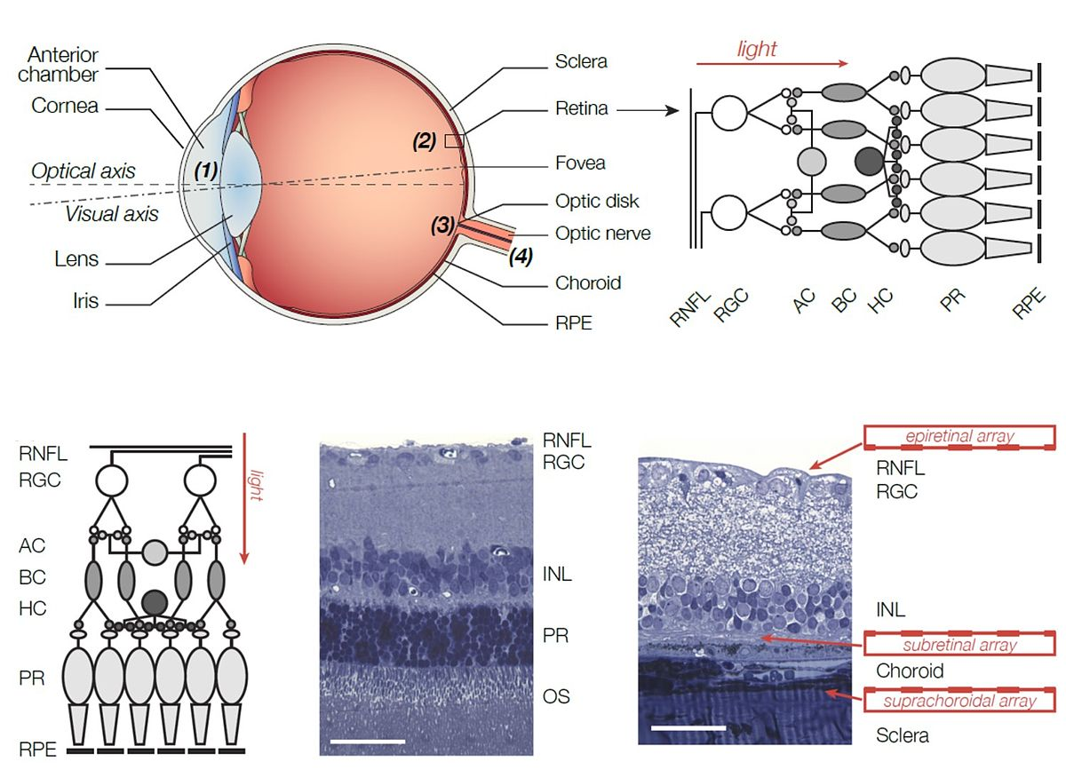 Retinal Implant Wikipedia Circuit Showing How A Virtual Ground Can Be Used To Enable Single