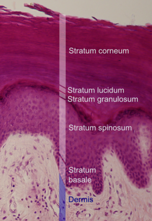Spinous cell - Histologic image showing a section of epidermis. Stratum spinosum labeled slightly below center.